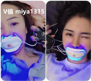 唯爱美牙仪,露出洁白牙齿的时候总会给人留下好感