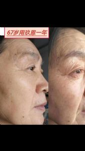 玖恩化妆品能调理什么皮肤问题?