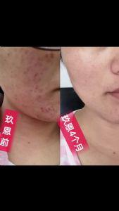 玖恩金钗石斛对皮肤有啥用?是纯植物提取的吗?图片
